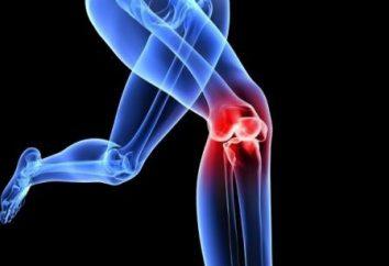 esercizio terapeutico in osteoartrite del ginocchio: gli esercizi, le regole per la loro attuazione