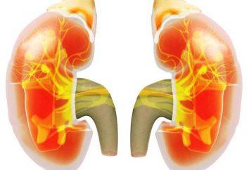 Skąpomocz – to … przyczyny, objawy i leczenie oligurią