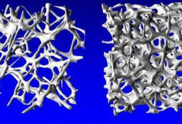 Härte legt den Knochen Nährstoffe in Lebensmitteln enthalten sind