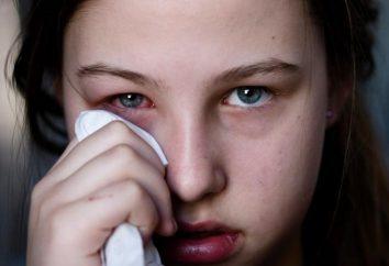 La conjonctivite traitement chez les enfants?