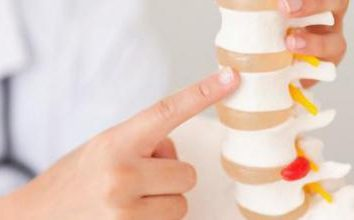 Come per il trattamento di osteocondrosi della colonna cervicale. Osteocondrosi della colonna cervicale: il trattamento a casa