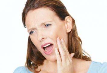 Comment et ce stomatite plaisir dans la bouche