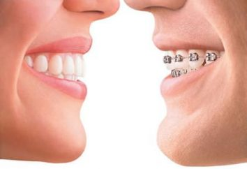 Metallstreben wird Ihr Lächeln perfekt!