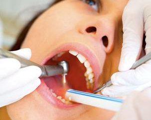 Saggezza dente trattato o rimosso? l'estrazione del dente del giudizio