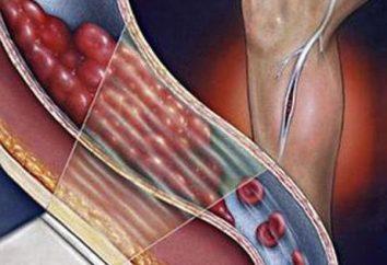 Tromboembolia degli arti inferiori: le possibili cause, sintomi e caratteristiche di trattamento