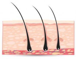 Comment se débarrasser des cheveux incarnés: conseils utiles