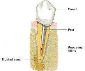 Pins in odontoiatria: installazione, prezzi reali