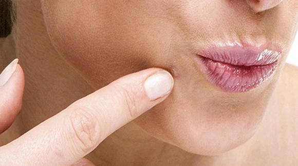 sintomi hpv femminile sentimente de inferioritate