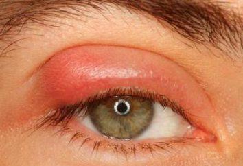 maść do oczu na zapalenie powiek: Opinie lekarzy