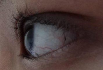 Capillaires enterrés dans les yeux: les causes
