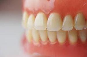 Acrilico protesi dentarie: i vantaggi e gli svantaggi, recensioni