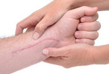 Silicona yeso, la eliminación de cicatrices: recomendaciones sobre el uso de
