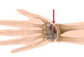Fraktur des Kahnbeins: Symptome und Behandlung