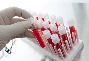 Badanie krwi na raka. Czy to możliwe, aby zidentyfikować badanie krwi na raka?