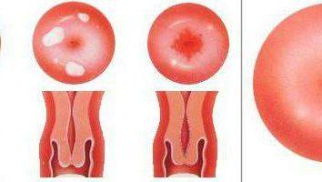 nadżerek w pierwiastek kobiet: przyczyny, objawy, leczenie