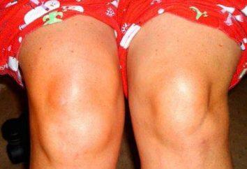Che cosa è cisti di Bekker del ginocchio?