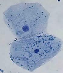 Procariote cellulare – organismo delle cellule pre-nucleare