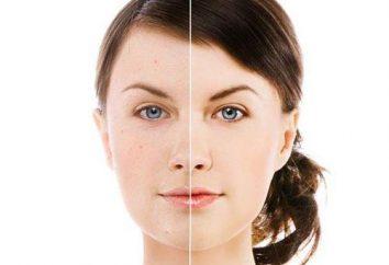 Une série de produits cosmétiques spécialisés « Baziron Control »: commentaires Dermatologues