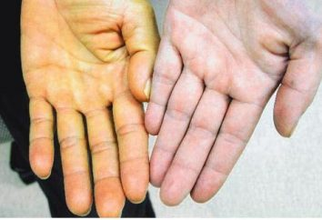 Parenchymale Ikterus: Symptome, Ursachen, Diagnose