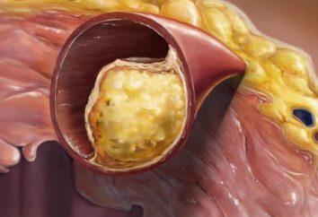 plaques de cholestérol dans les vaisseaux sanguins: les causes de l'éducation, les symptômes, les conséquences. Comment nettoyer les vaisseaux sanguins de la plaque?