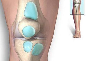 Leczenie zapalenia kaletki stawu kolanowego: powrót łatwy chód