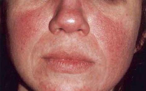 Cortisonspritze Nebenwirkungen Rotes Gesicht