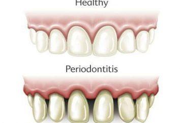 Che cosa è la parodontite? Classificazione e trattamento