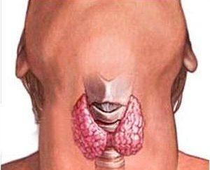 Il sintomo principale del cancro della tiroide