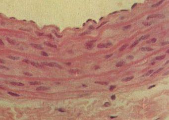 Aorta – l'aorta del cuore è …. sigillo aortica