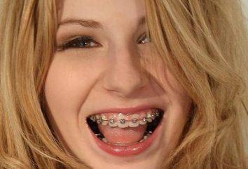 Ile nosić aparat ortodontyczny?