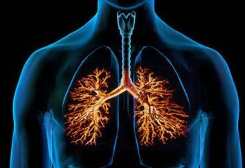 Las complicaciones de la bronquitis: causas y consecuencias