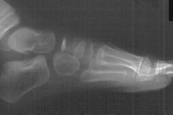 Navicular. Le ossa del piede: Anatomia