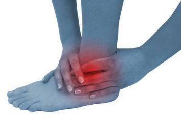 Le malattie che colpiscono le articolazioni della caviglia: artrite