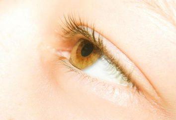 Żółte oczy u ludzi: przyczyną objawów żółtymi oczami