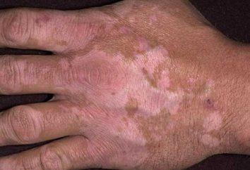 Weiße Flecken auf den Händen – was ist das? In den Händen waren weißen Flecke: Ursachen