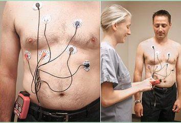 Holter – effektive Methode für die Diagnose des Herzens