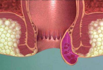 Le emorroidi sono di sangue: cosa fare prima della visita al medico?