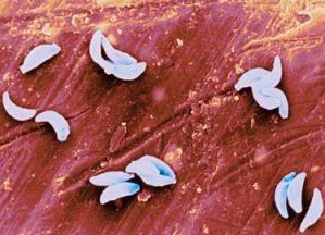 La diagnosi della toxoplasmosi. Analisi di PCR (toxoplasmosi) e risultati di decodifica
