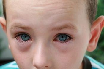 Czerwone oczy u dzieci – okazją do okulisty