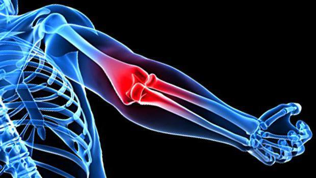 Anatomie. Ellenbogengelenk: Struktur, Bänder, Muskeln und Funktionen