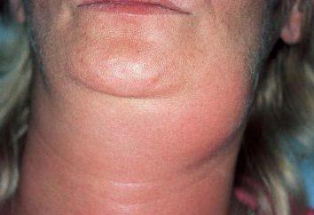 lymphadénite: sous-maxillaires symptômes et traitement, Causes