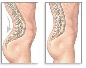 lordozy kręgosłupa: Przyczyny i objawy