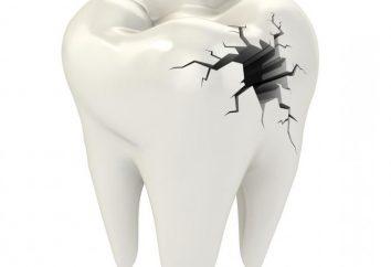 Perché sogno di denti rotti? Impariamo!