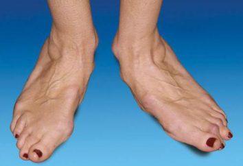 L'artrite è il trattamento piedi e le cause della