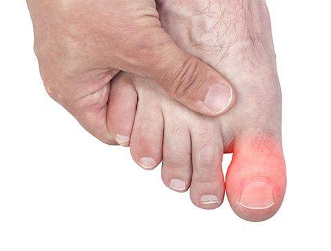 La fractura del dedo gordo del pie: los síntomas. ¿Necesito un yeso ...