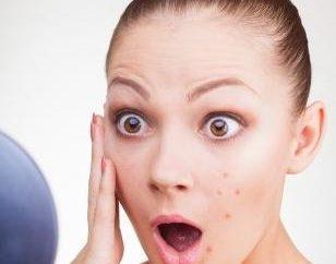 Quels sont les boutons sur le visage? Comment faire face?