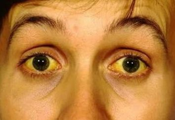 Ictericia – ¿qué es esto? Ictericia: causas, diagnóstico y tratamiento