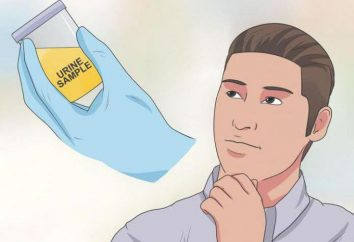 Jak zdać test moczu substancji uzależnień?