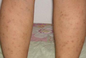 Havia marcas vermelhas nas pernas. O que isso significa?