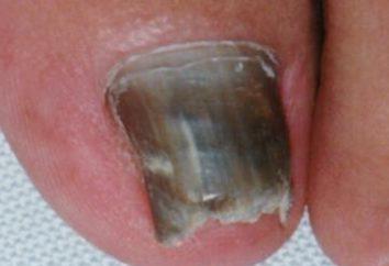Le cause dei sintomi e trattamento delle unghie onicomicosi